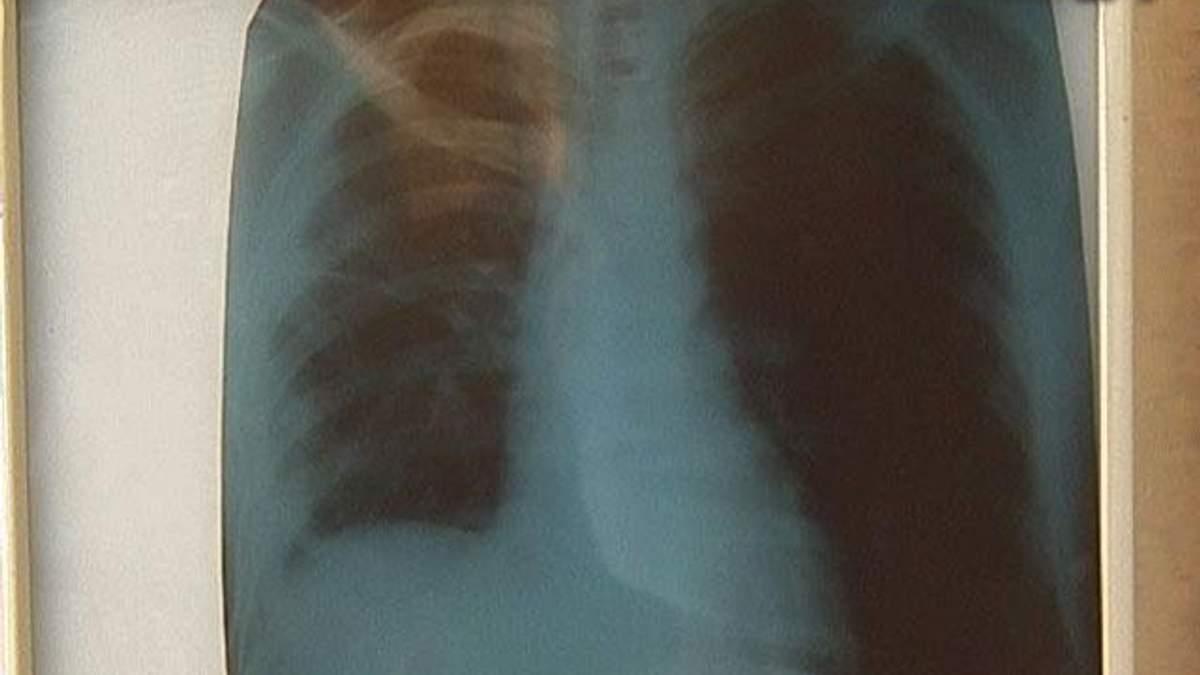 На Донетчине заболеваемость туберкулезом снизилась на 30%