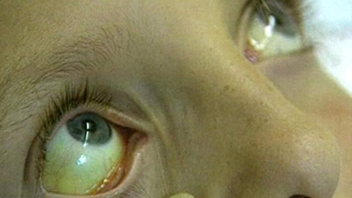 В Украине почти 4 миллиона человек больны гепатитами В и С