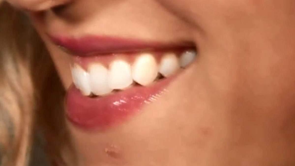Факти про здоров'я. Здорові зуби зменшують ризик хвороб серця та деменції