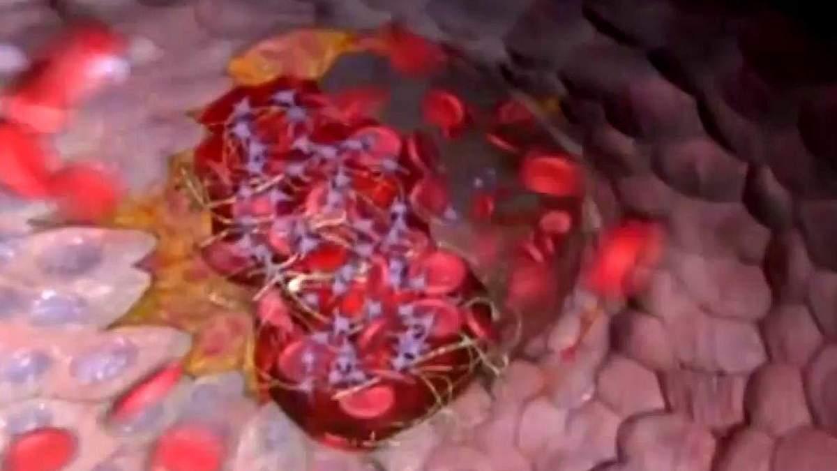 Факти про здоров'я. Симптоми Інфаркту міокарда