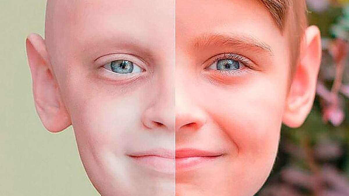 Скільки грошей потрібно українцю для лікування раку
