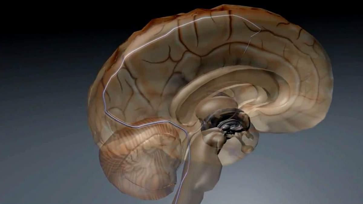 Медики винайшли пристрій, що дозволить керувати пристроями силою думки