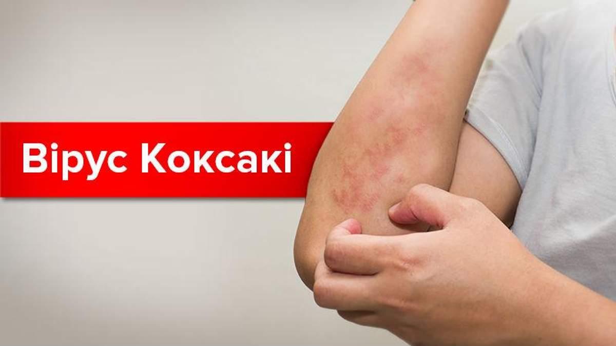 Вірус Коксакі: симптоми