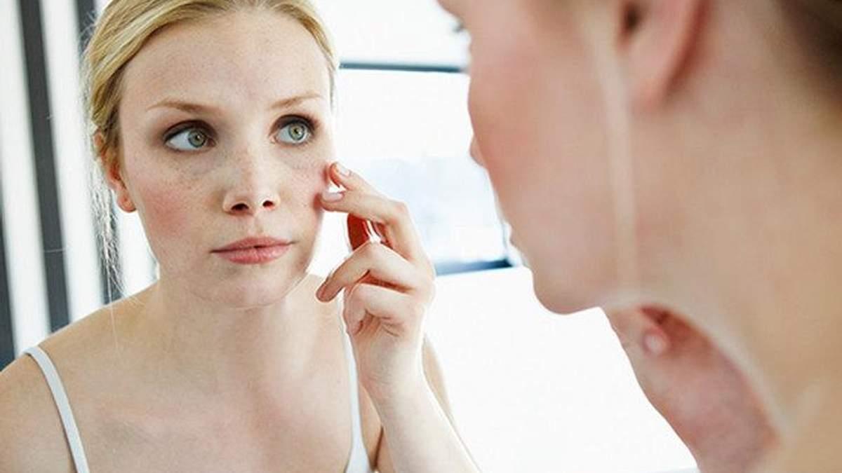 10 проверенных способов спасти обветренную кожу