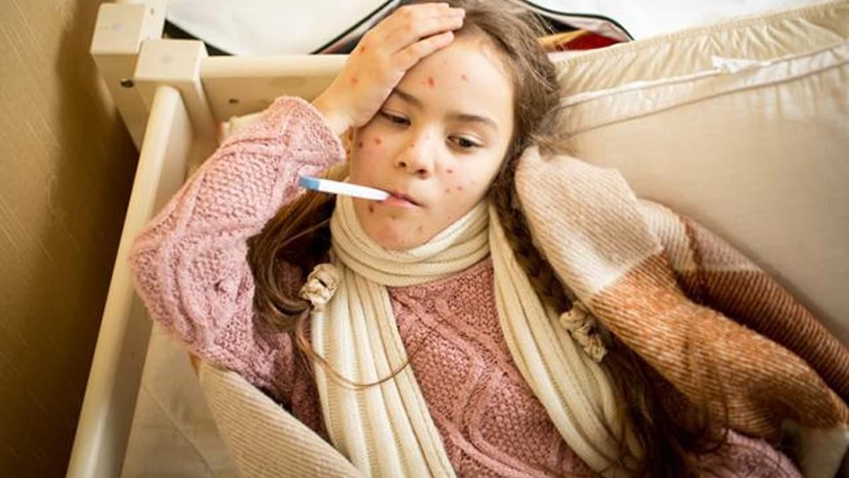 Дети массово заболели корью на Прикарпатье