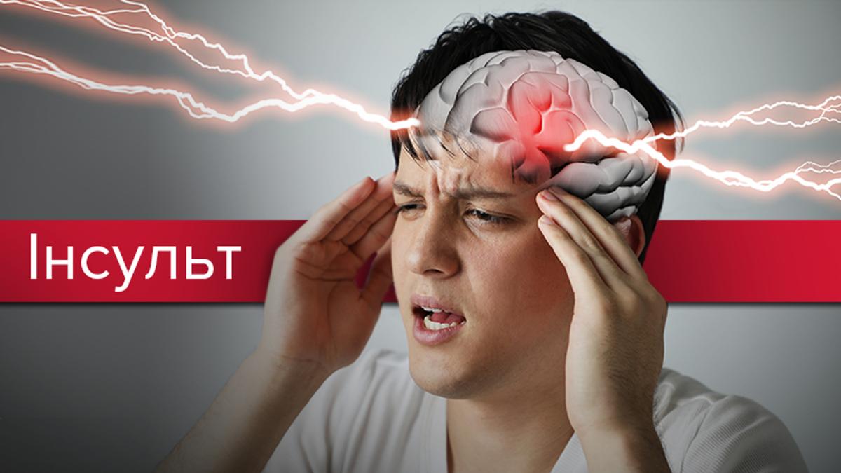Інсульт: симптоми, перша допомога, причини та як розпізнати