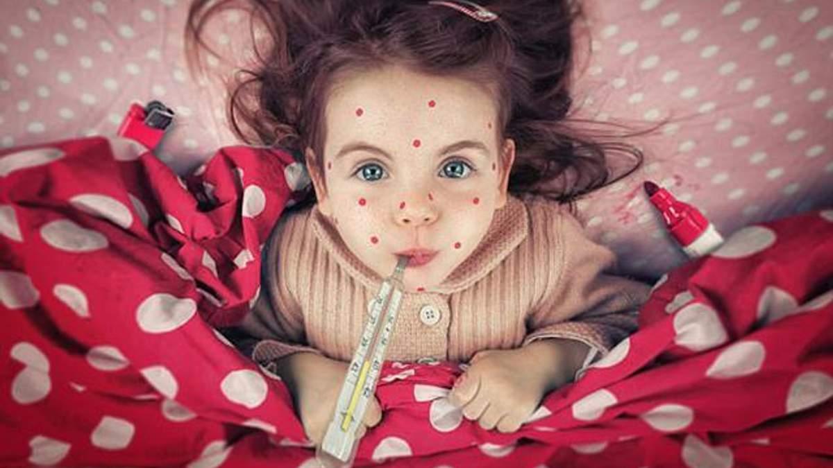 Кір в Україні: рекордна кількість хворих зафіксована у Чернівецькій області