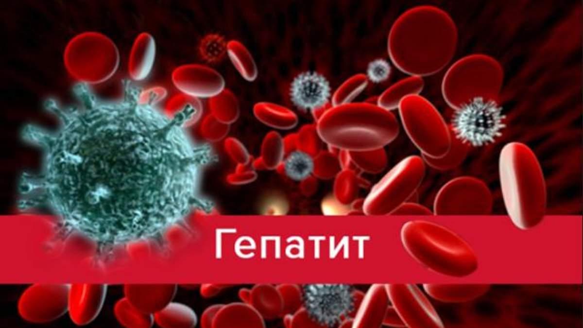 Гепатит А в Україні: у Миколаєві зросла кількість хворих