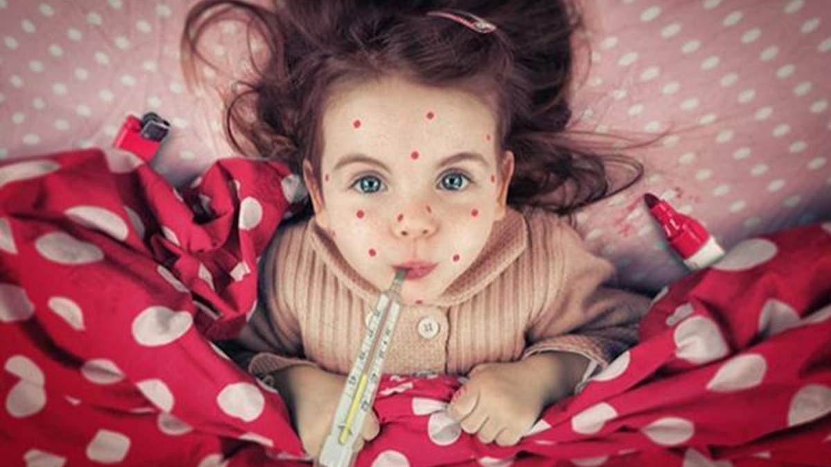 Як не захворіти на кір: 7 важливих питань до інфекціоніста