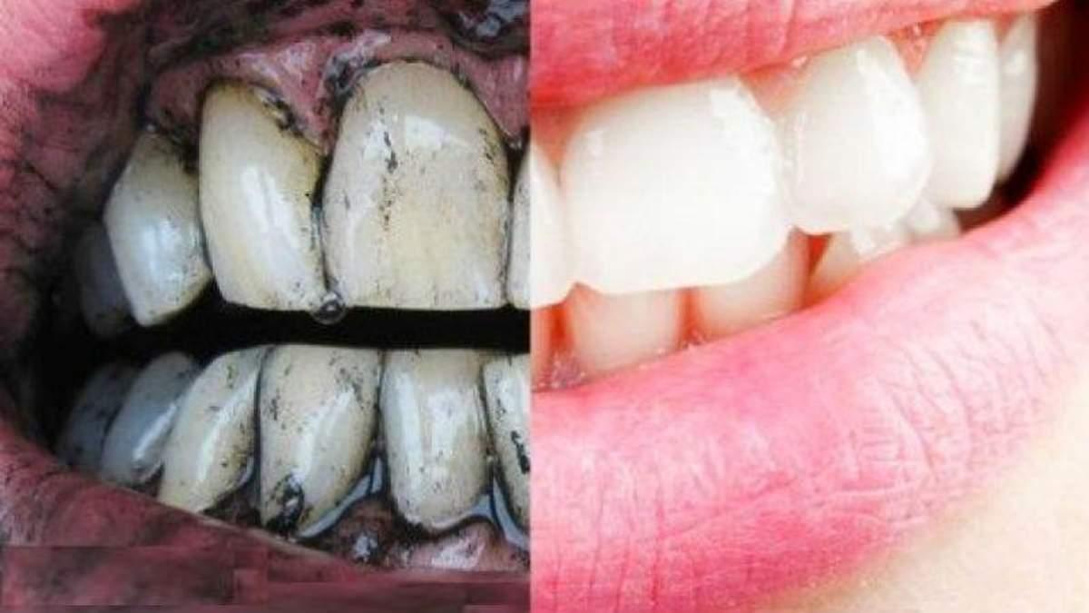 Стоматолог розповів, чому небезпечно відбілювати зуби вдома