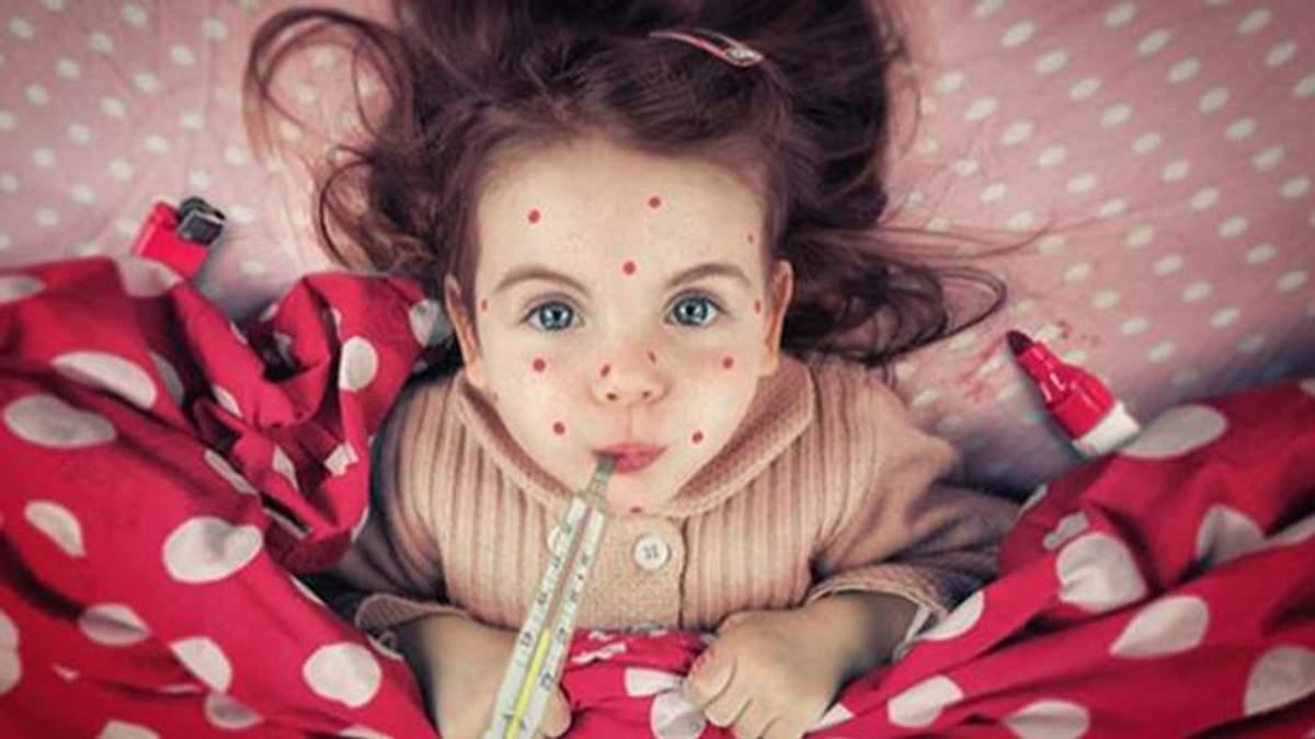Корь в Харькове: в больницу попали 4 человека, которые имели прививки