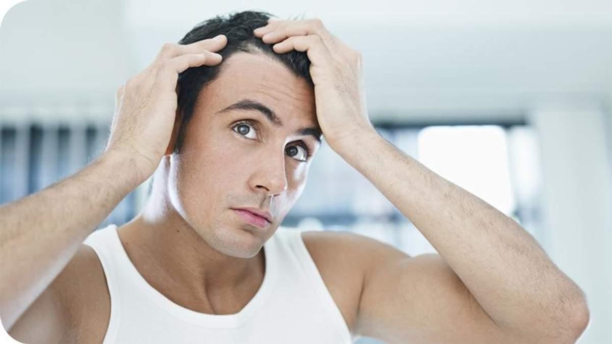 Чому чоловіки страждають від раннього облисіння