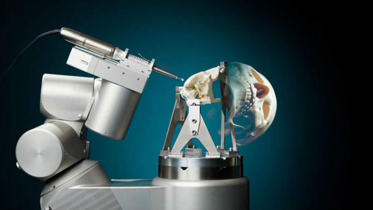 Вчені розробили робота, який може проводити операції на мозку