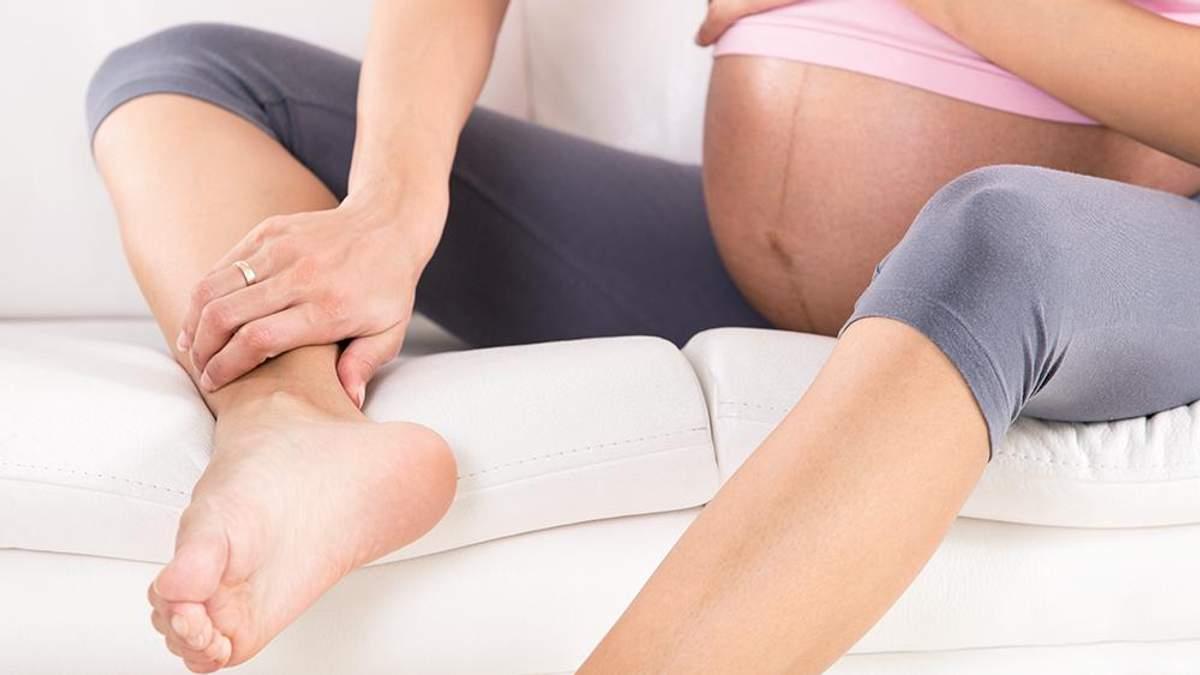 Що спричиняє варикозне розширення вен у вагітних