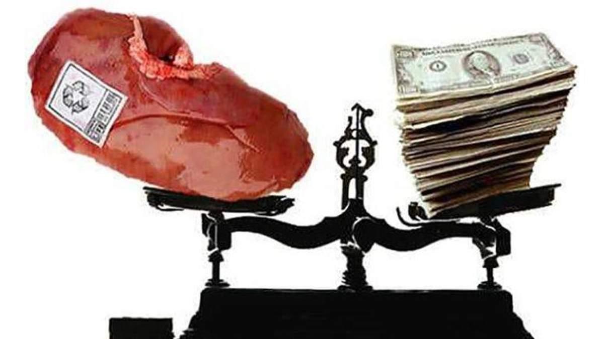 Тело в розницу: по какой цене украинцы продают свои органы