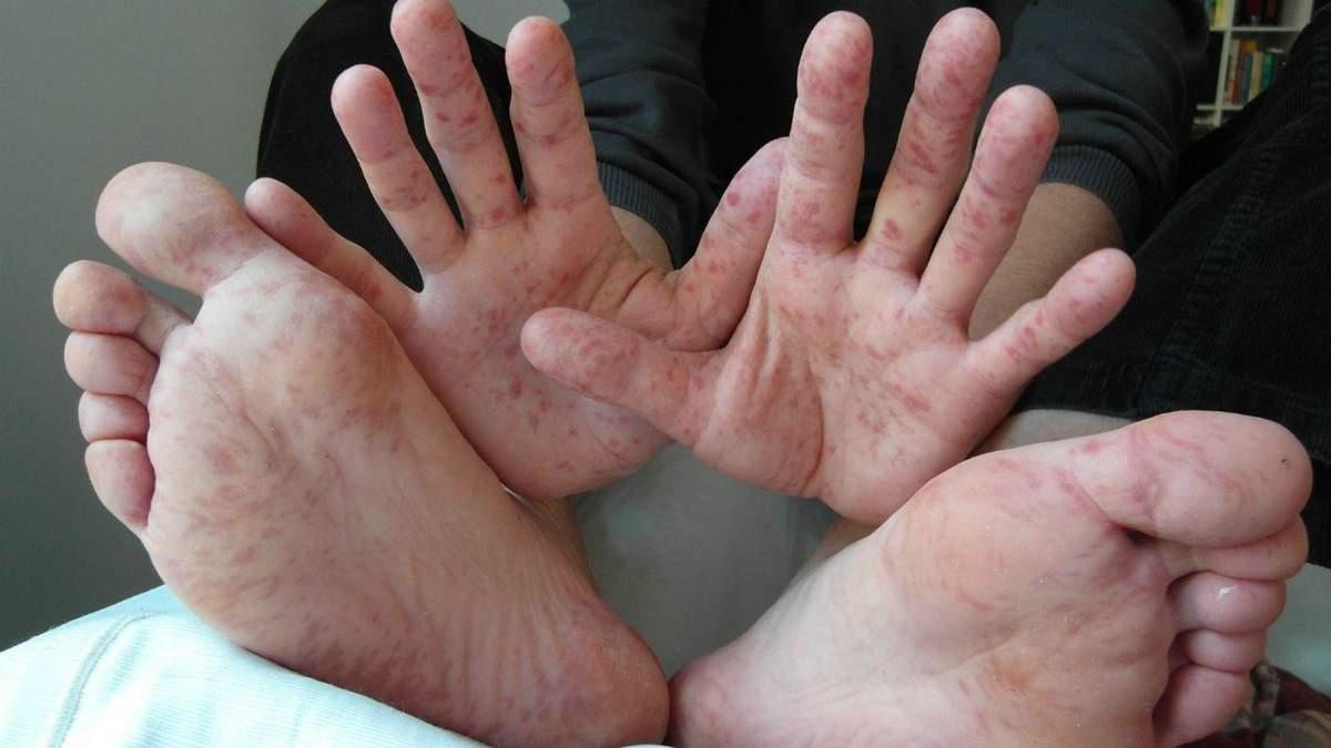 В Україні не спадає спалах кору: лише за останній тиждень захворіло 1300 осіб