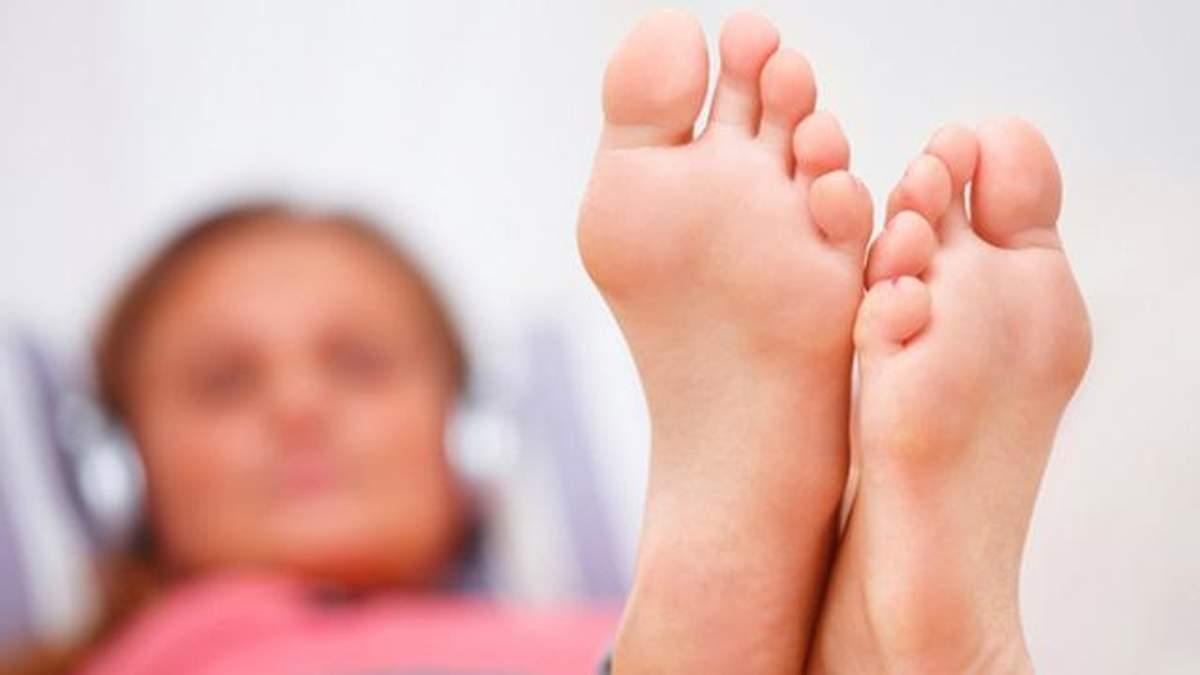 Сухі мозолі на ногах: що робити