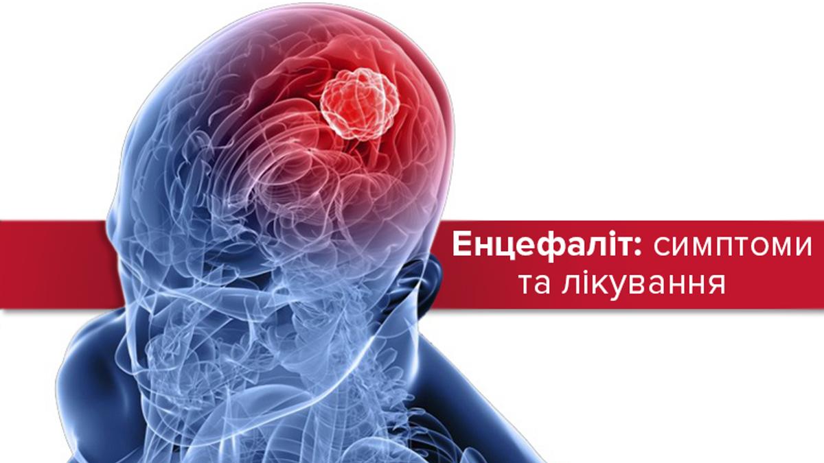Энцефалит: симптомы и методы лечения воспаления мозга