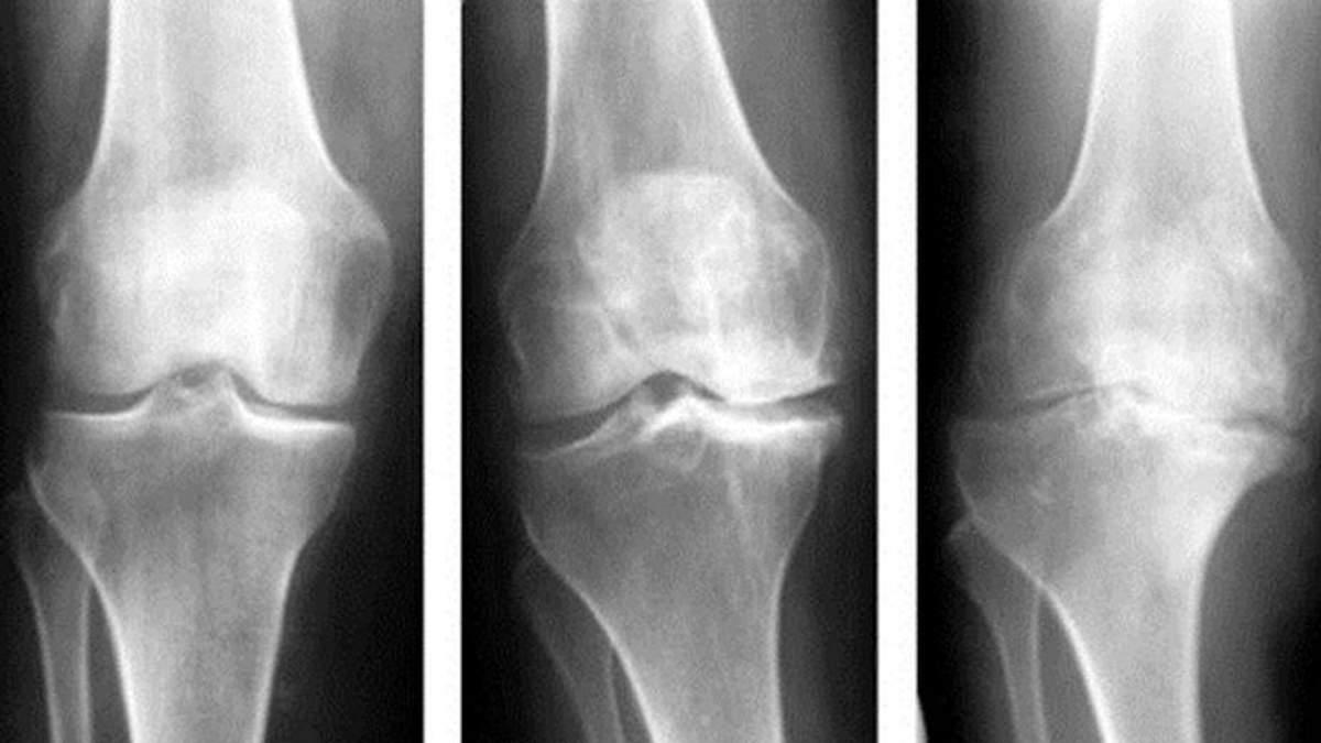 Чому болять руки: основні причини виникнення артрозу