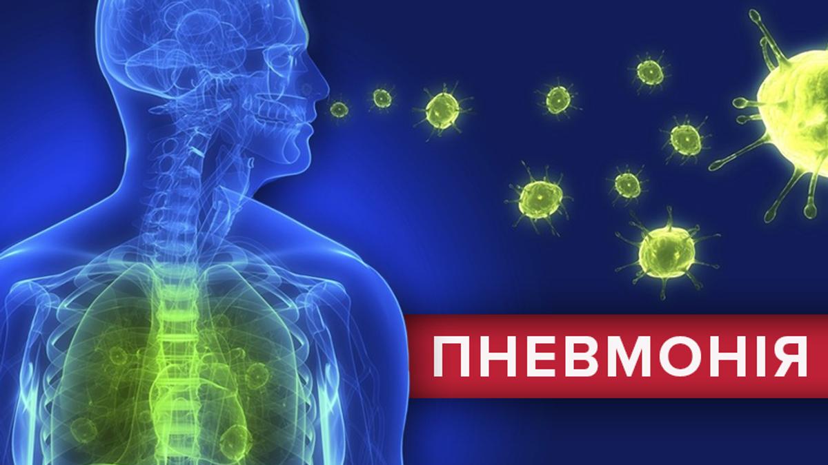 Пневмонія: симптоми, лікування та діагностика