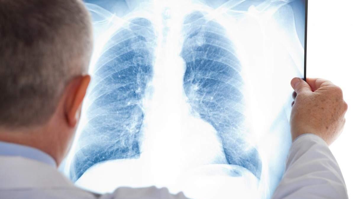 Хворі на туберкульоз лікуватимуться вдома