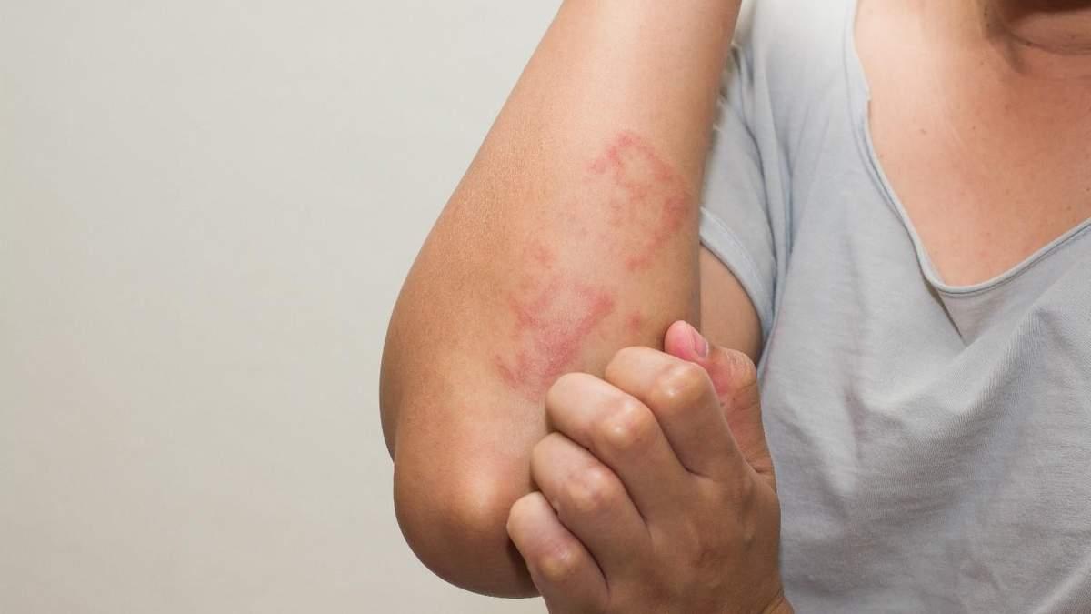 Люди придумують собі алергію, якої не мають: дослідження