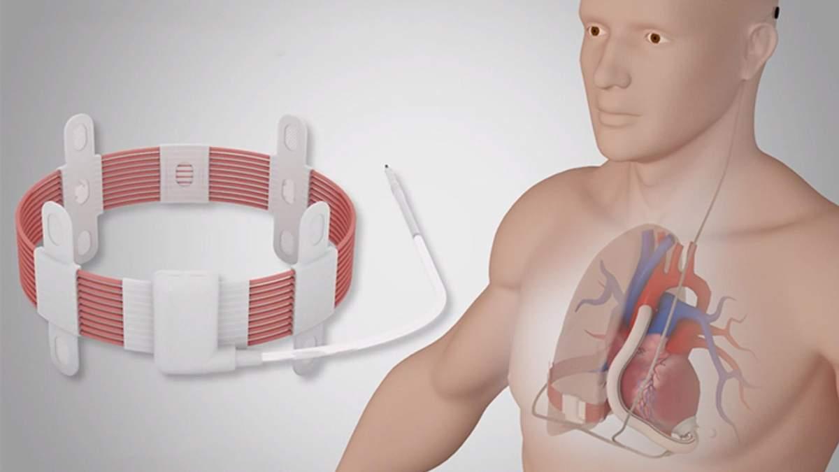 Ученые впервые вживили искусственное сердце с возможностью беспроводной зарядки