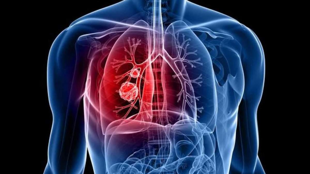 Десять мифов о туберкулезе и их опровержение