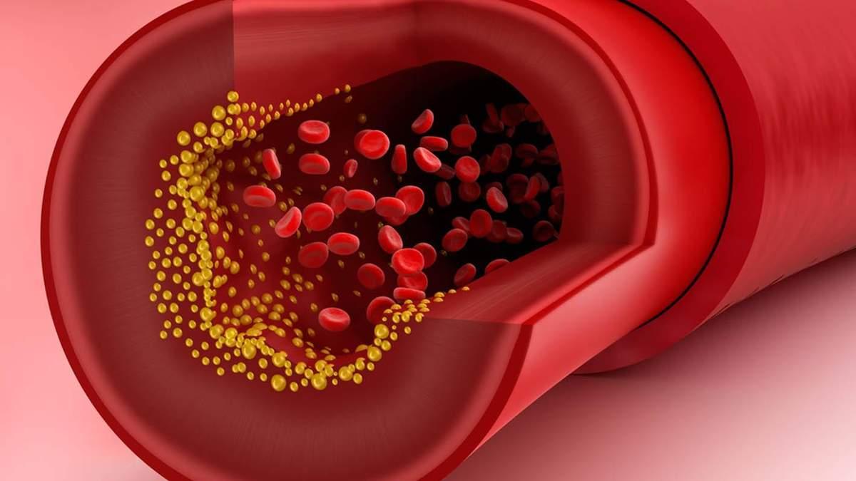 Чому потрібно перевіряти рівень холестерину і де це зробити безкоштовно