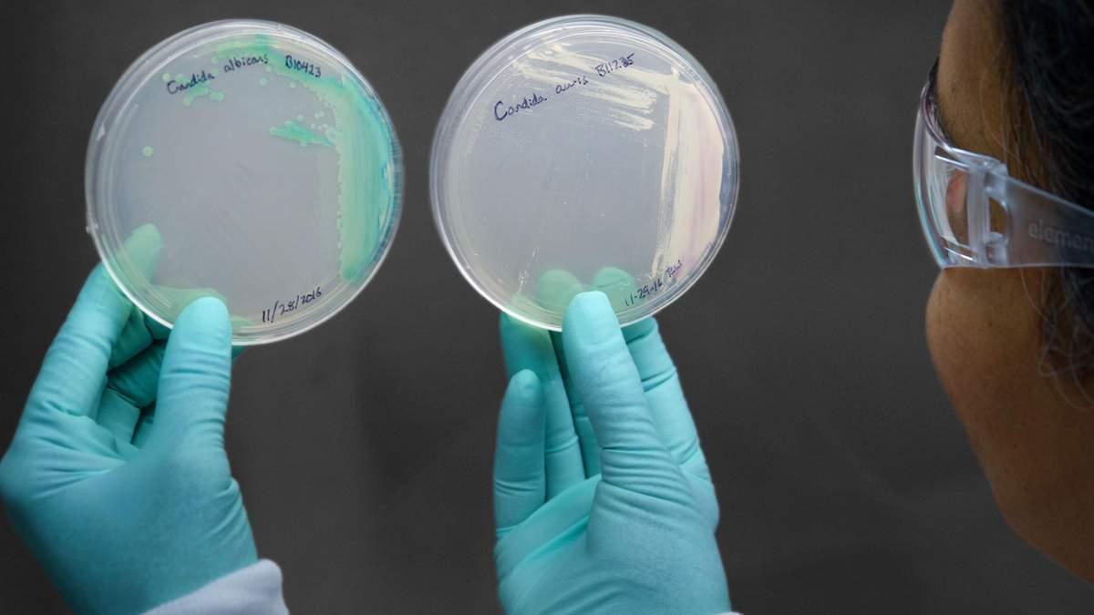 Світом поширюється грибок, який вбиває людину за 90 днів