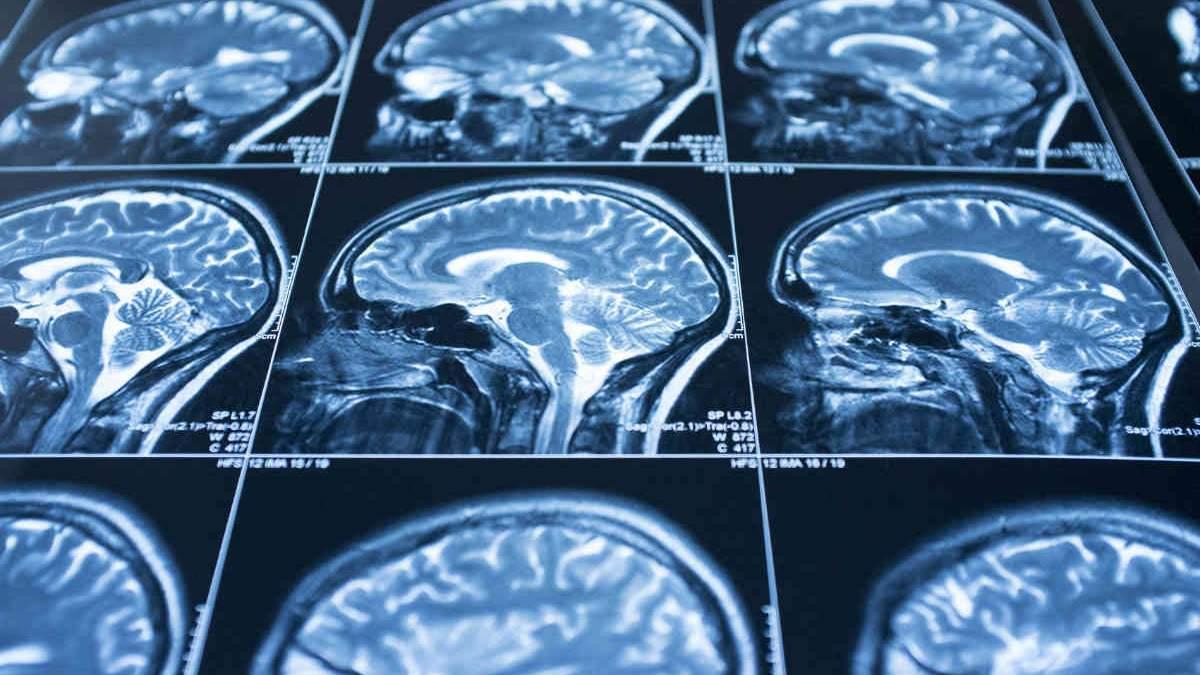 Як відрізнити струс мозку від звичайного забою