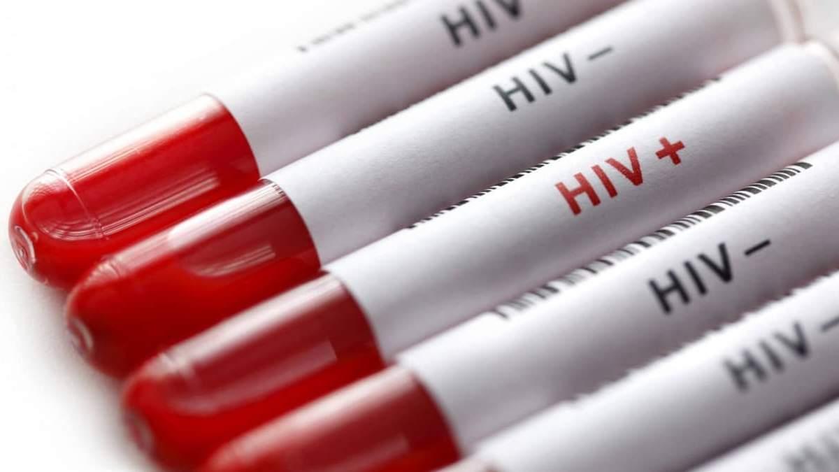 Безкоштовне тестування на ВІЛ