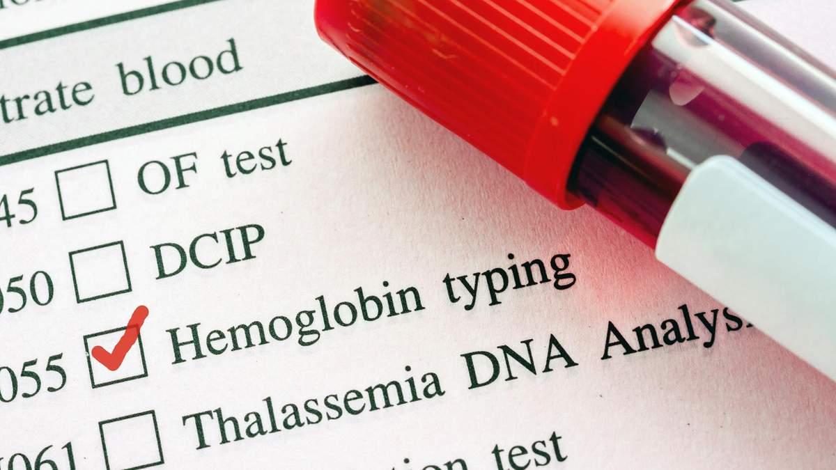 Високий гемоглобін – причини, як знизити рівень гемоглобіну