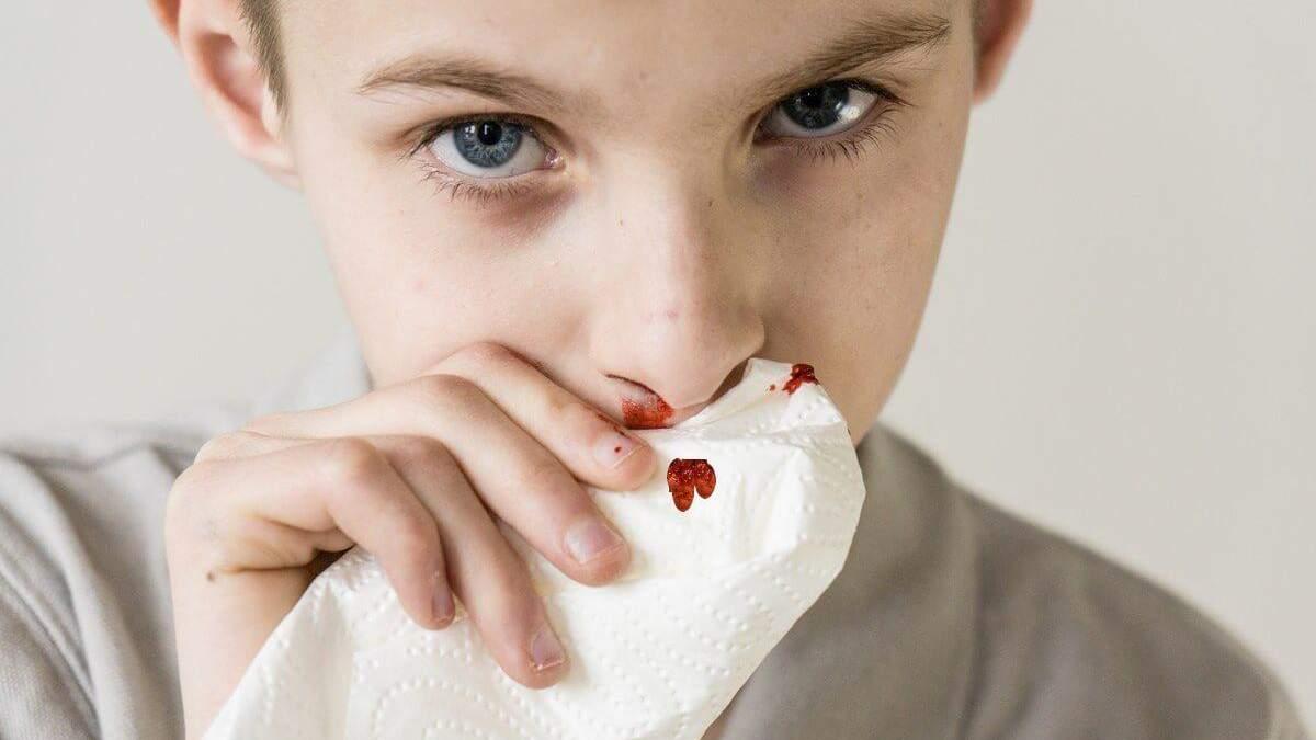 Як розпізнати лейкоз у дитини