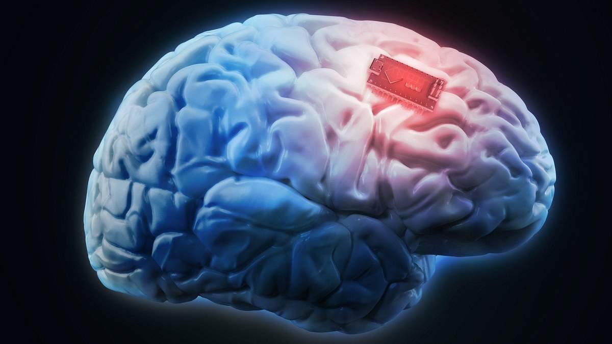 Чіпи в мозку допоможуть лікувати хвороби