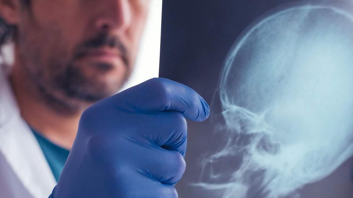 Навіть один удар по голові може призвести до незворотних хвороб