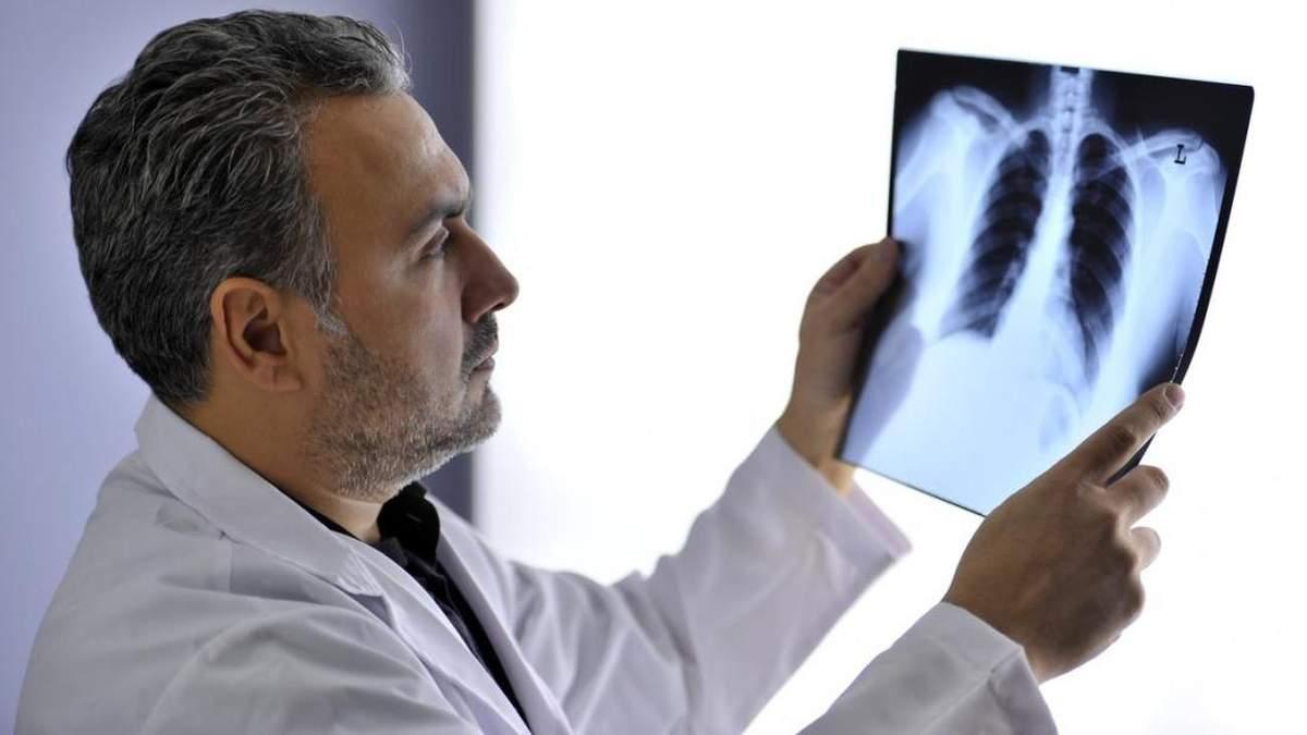 Новий аналіз може виявити рак легень на першій стадії