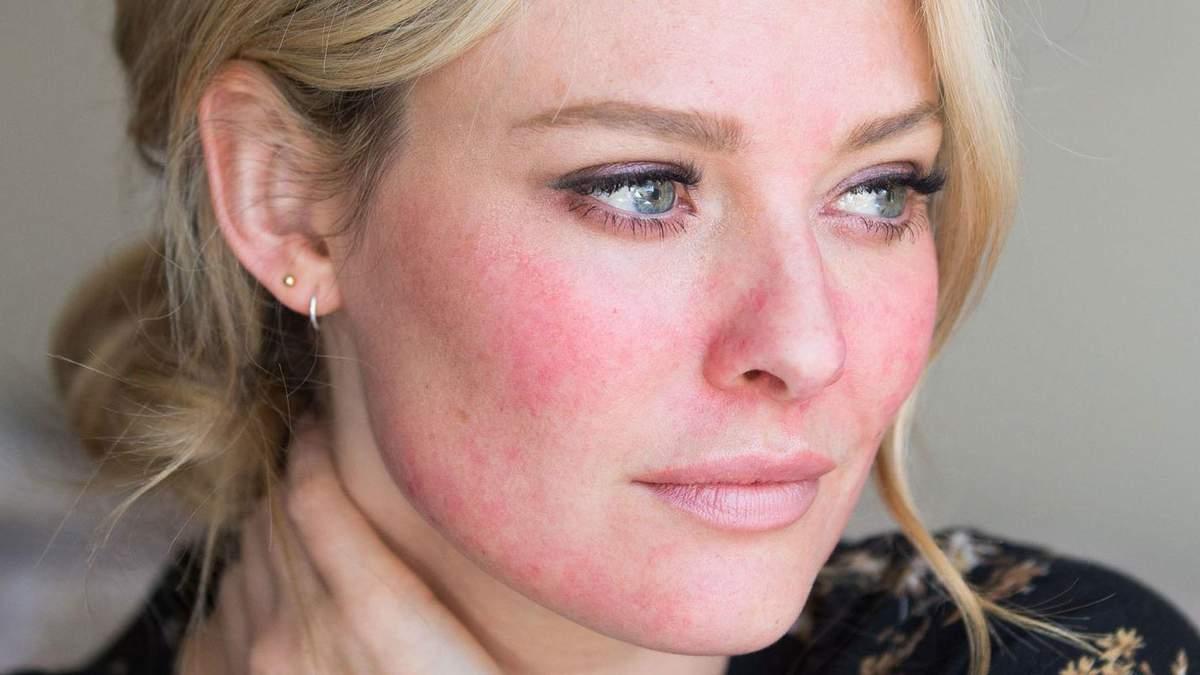 Розацеа – що це таке, як лікувати, дієта при розацеа на обличчі