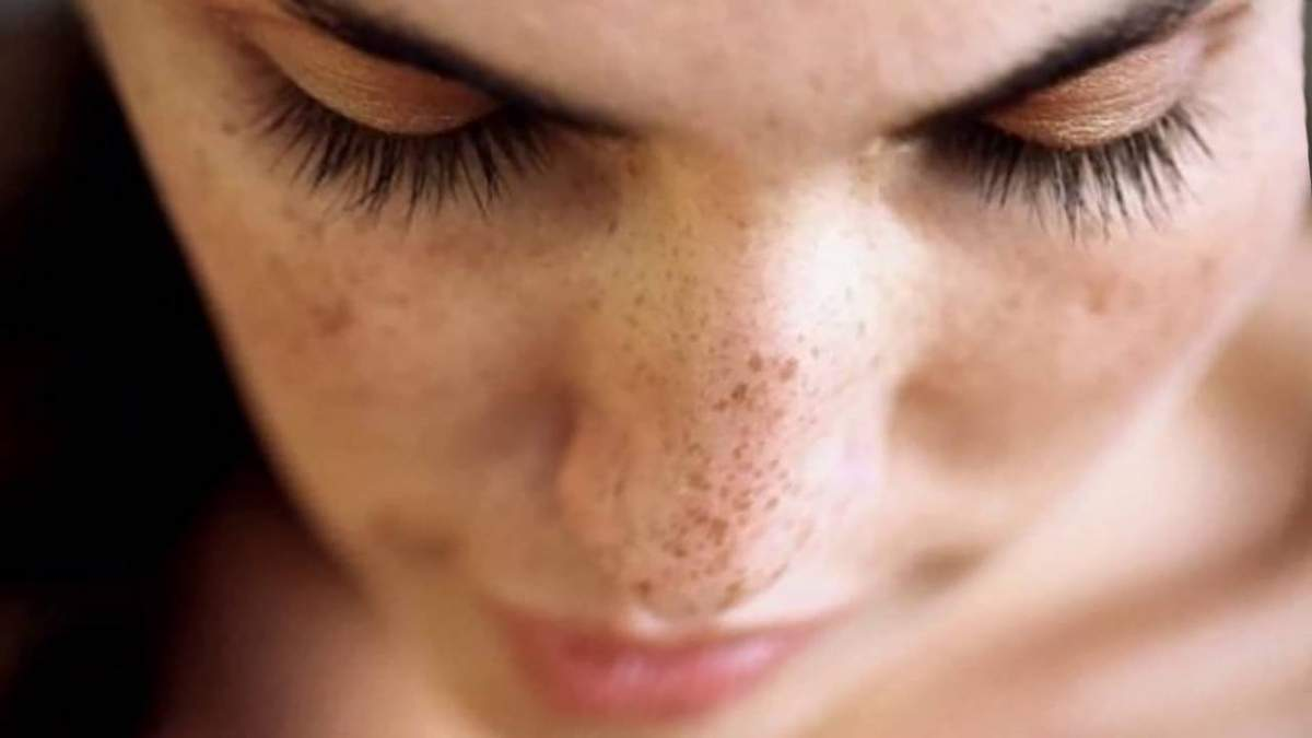 Пигментация кожи – причины, как избавиться от пигментации
