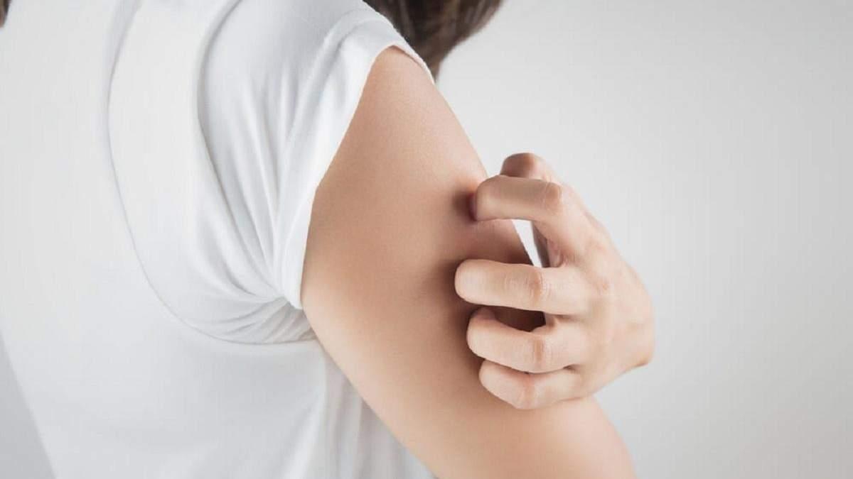 Как ухаживать за кожей во время псориаза