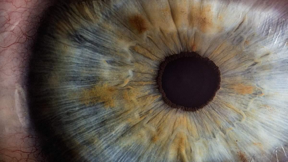 В українця витягнули з ока 12-сантиметрового глиста