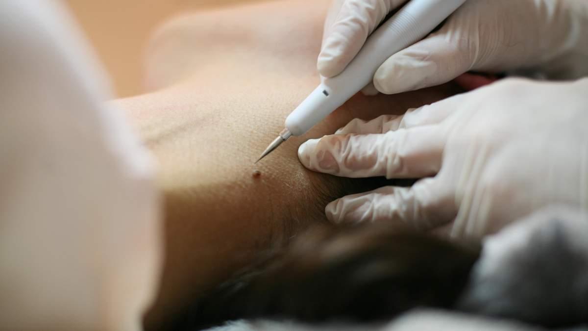Папіломи та бородавки: коли статеве захворювання переростає в рак – відповідь Супрун
