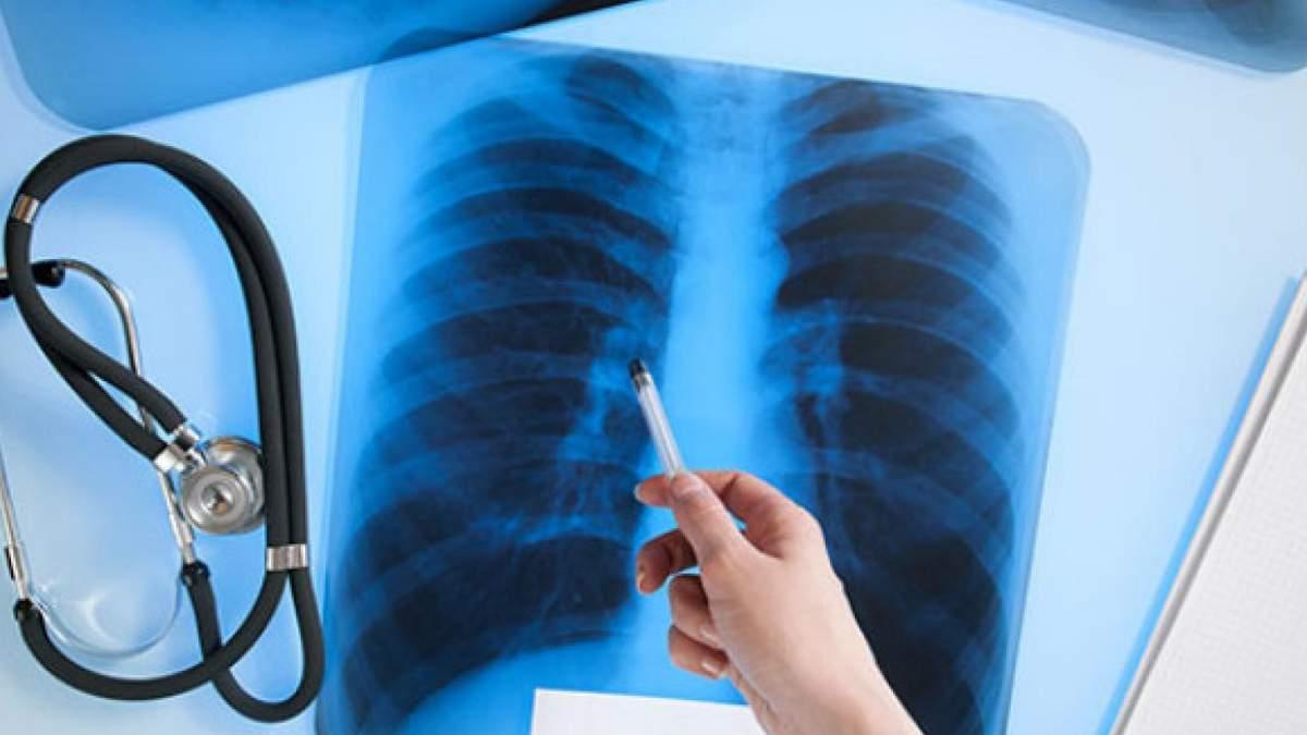 Туберкульоз у львівської вчительки