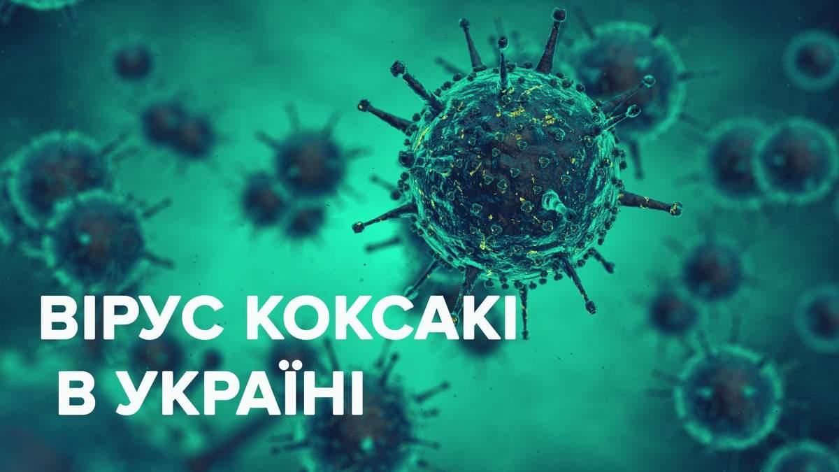 Вірус Коксакі в Україні 2019 – що це, лікування, діагностика