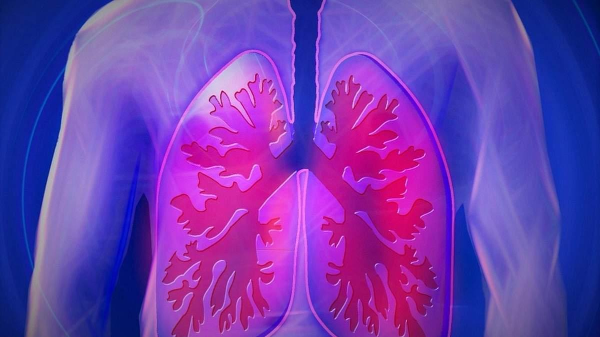 Діагностика туберкульозу