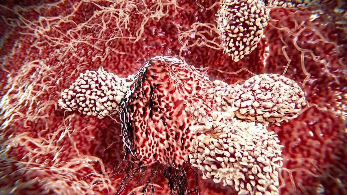 Т–клітини можуть атакувати ракові клітини
