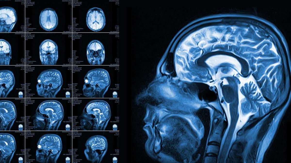 Хробак у мозку