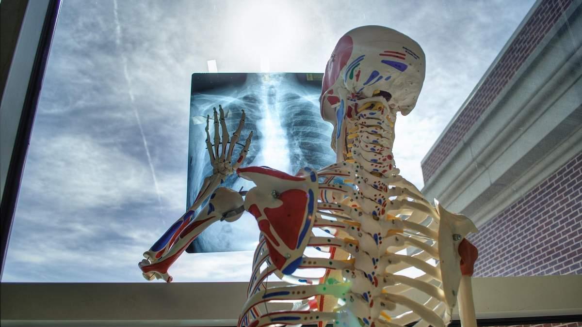 Для чего делают рентген