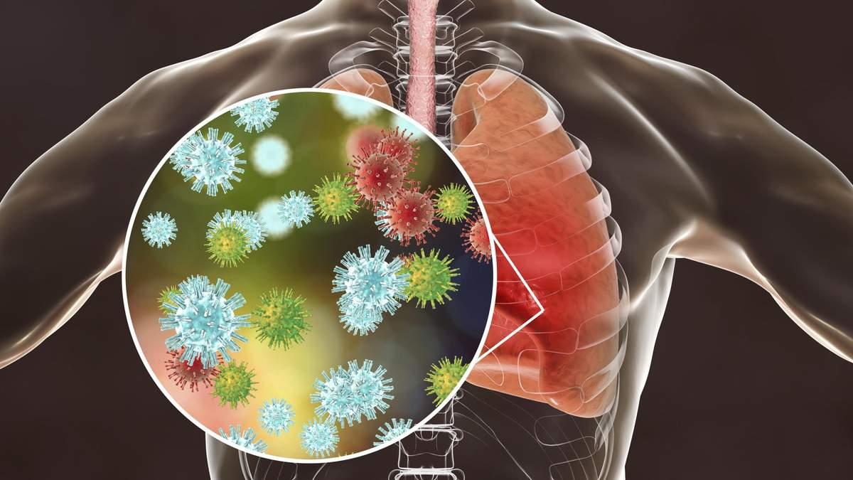 Попередник коронавірусу 2019-nCoV: чому SARS небезпечніший