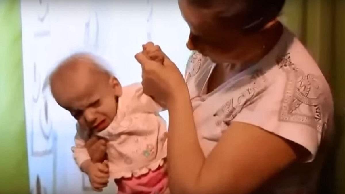 На Волині маленька дівчинка померла від передчасного старіння